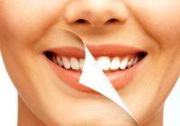 Metode naturiste de albire a dintilor – sunt bune sau nu
