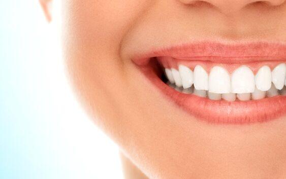 8 alimente care iti albesc dintii